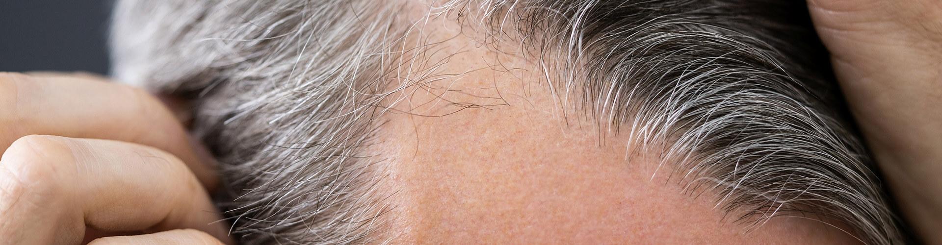Hair Loss/Alopecia Alpharetta, GA