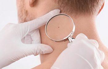 doctor inspect moles
