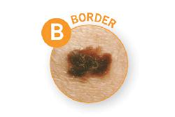 B-border